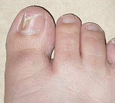 How to heal toenail fungus at home