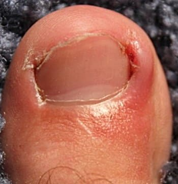 Toenail Fungus or Bacterial Infection - telling the difference