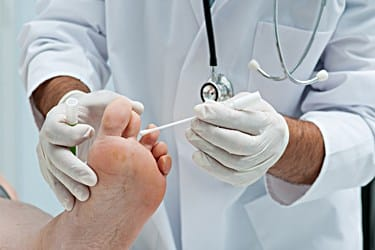 Type 2 Diabetes and Black Toenail Fungus Treatment Methods