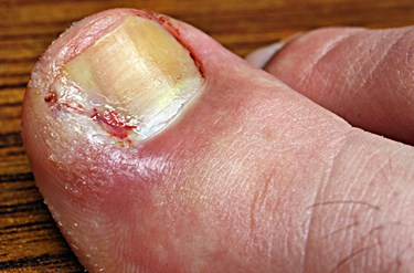 Can Toenail Fungus Cause Bleeding