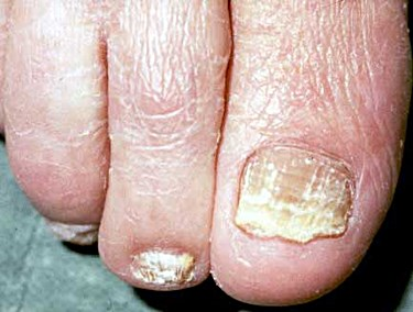 What are the causes of Crumbling Toenails?