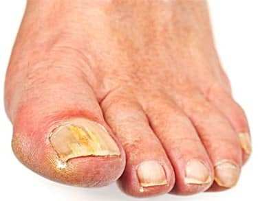 Reasons for Sore Skin around the Toenails