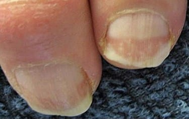 Reasons For Thick And Dry Toenails