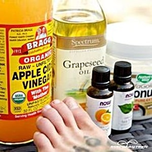 Will apple cider vinegar clear up Toenail Fungus?