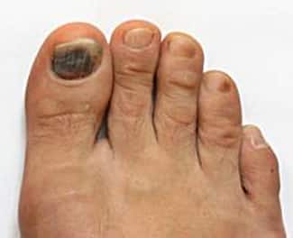 How to get rid of a black toenail at home