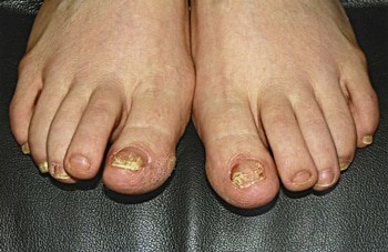 What are the different types of Toenail Fungus?