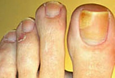 What's the best yellow toenails treatment?