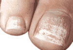 What are the different types of white toenail fungus?