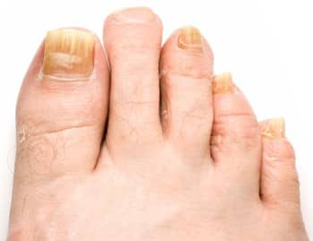 Best Mild, Moderate, & Severe Toenail Fungus Remedy