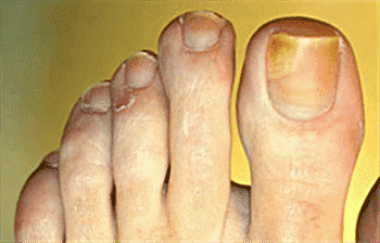 How to Get Rid of Fungus Under the Toenail