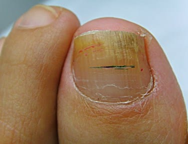 Can Toenail Fungus Be Cured Naturally