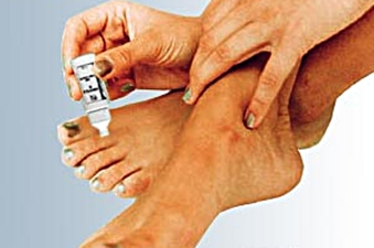 how to get rid of toe fungus permanently