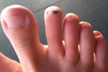 Black Spot under the Toenail