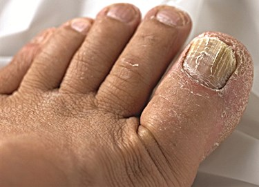 Can Toenail Fungus Spread to Other Toes?