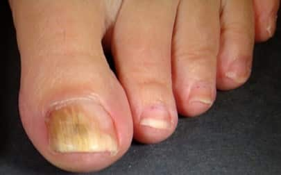 Early Signs Of Toenail Fungus