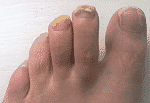 Toenail Fungus that Won't Go Away