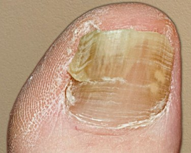 Difference Between Toenail Fungus and Injury