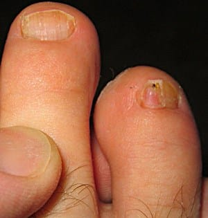 How to Get Rid of Toenail Fungus Permanently