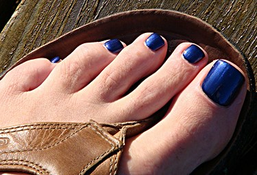 How to Hide Toenail Fungus with Polish — Yellow Toenails Cured