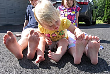 Toenail Fungal Infection in Toddlers