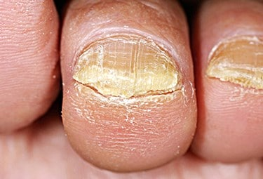 What Happens To Toenail Fungus If Left Untreated?