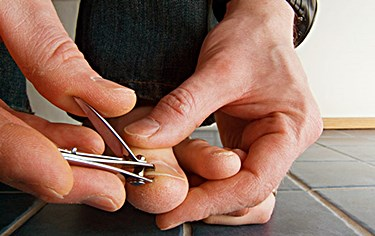 The Ugly Truth about Why Toenail Fungus KEEPS Coming Back