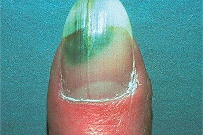 Difference Between Toenail Fungus and Green Nail Syndrome