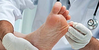 Can Toenail Fungus Cause Nerve Damage?
