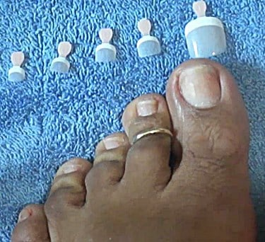 fake-toenails-to-cover-fungus
