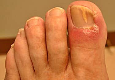 How to reduce Inflammation from Toenail Fungus