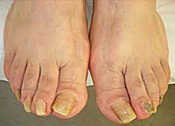 Does white iodine for toenail fungus work yellowtoenailscured how to use white iodine for toenail fungus sciox Gallery