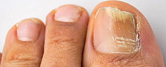 yellow-around-cuticles