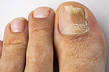Is Toenail Fungus Caused by Candida? — Yellow Toenails Cured
