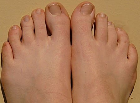 What's the Best Toenail Softening Cream?