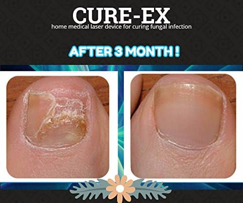 Cure Ex Fungus Treatment Laser Device Review