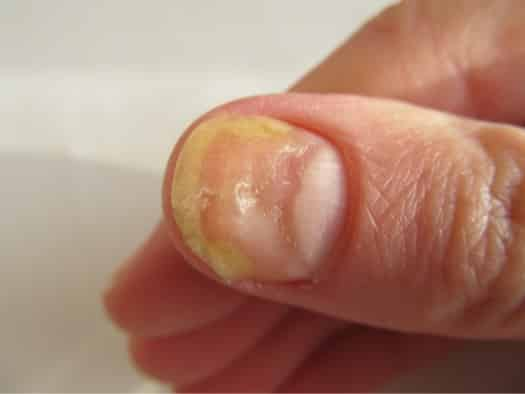 What\'s the Best Fingernail Fungus Treatment? — Yellow Toenails Cured
