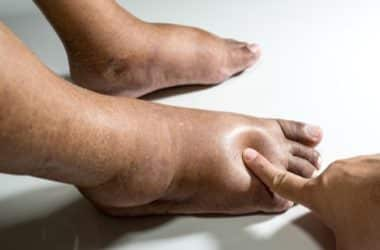 How to reduce swelling in feet and ankles