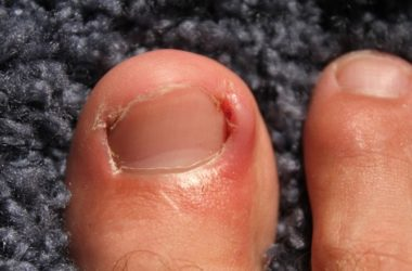 toenail growth slowed