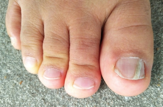toenail no longer growing