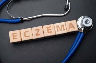 Does Dyshidrotic eczema go away?