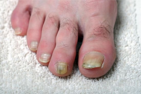 How to Use Baking Soda and Hydrogen Peroxide for Toenail Fungus?