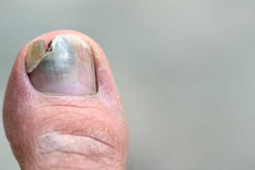 Black Toenail Fungus Treatments and Home Remedies That Work!