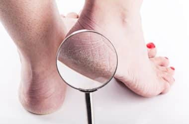 how to fix severely cracked heels