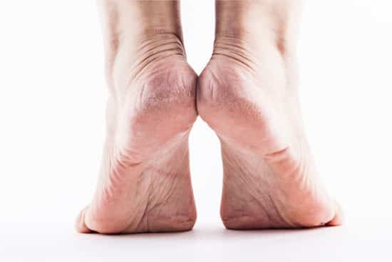 how to remove thick dead skin from feet