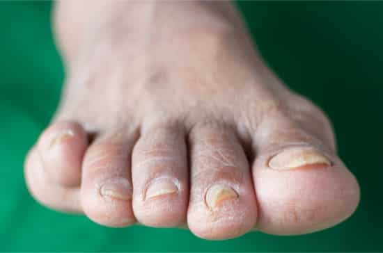 discolored toenails due to diabetes