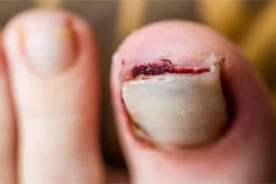 nail detached from nail bed due to injury