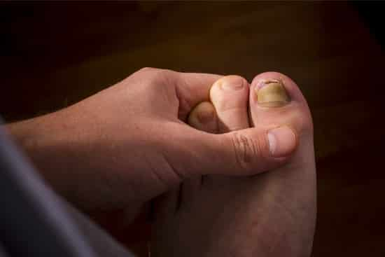 What Causes Toenail Fungus? 7 Reasons Why People Get Infected!