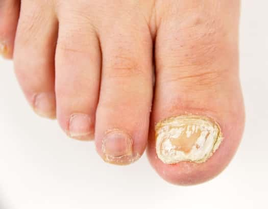 Which Is the Best Over the Counter Toenail Fungal Cream?