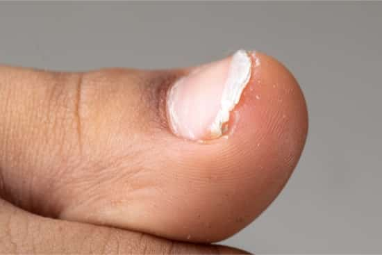 What Causes Brittle Toenails with Ridges? — Yellow Toenails Cured