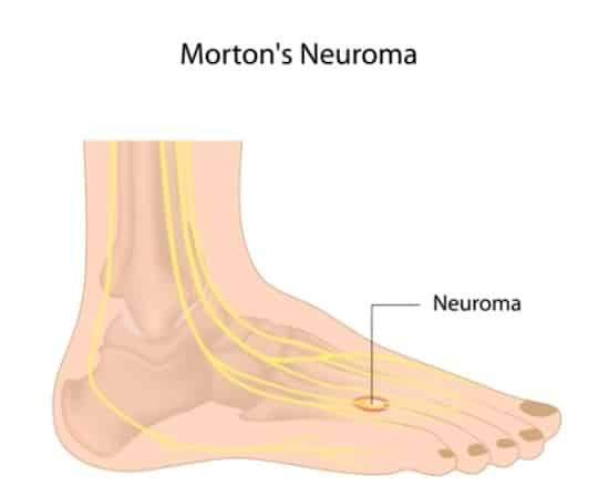 nerve entrapment top of foot